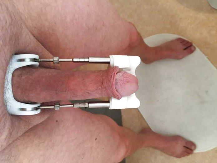 Jes-Extender-alungire-penis