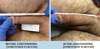 operatie-marirea-penisului-2