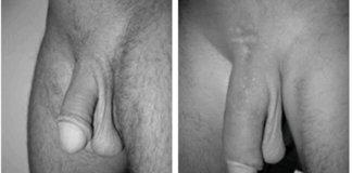 operatie-marirea-penisului-4