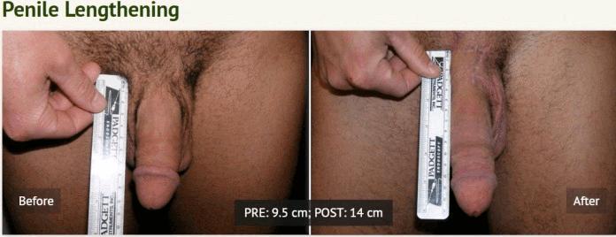 operatie-marirea-penisului-5