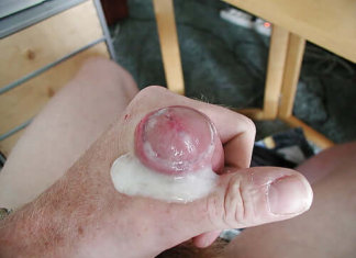alergic-la-sperma
