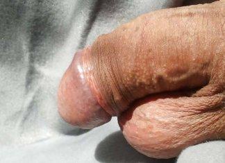 probleme-de-erectie